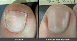 Toenail Fungus Before After Laser Treatment